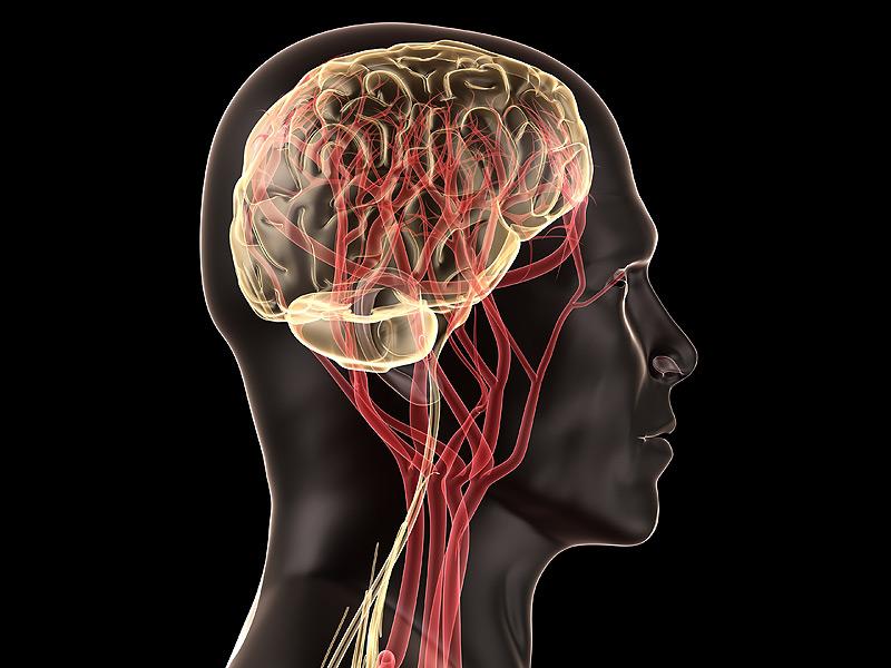 Especialista Neurovascular Principais Doenças e Tratamentos
